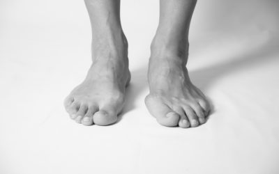 Do You Really Need Bunion Surgery? (Maybe Not!)